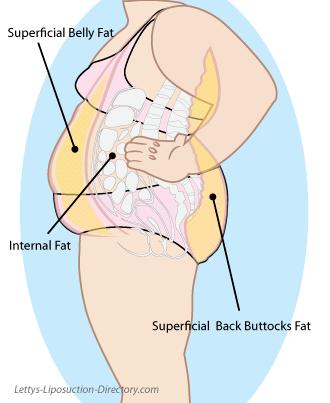 Superficial fat illustration...