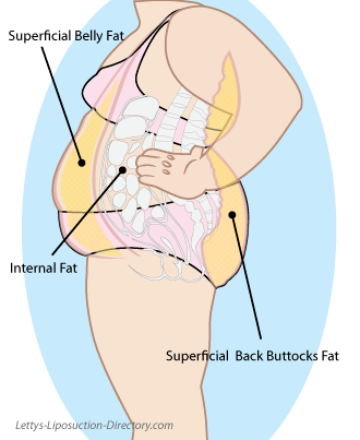 Superficial fat illustration...